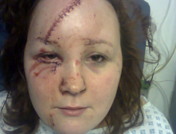 Bride-to-be calls off wedding after head-on collision with drunk-driver
