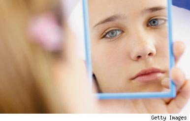 Girl looking at acne in mirror