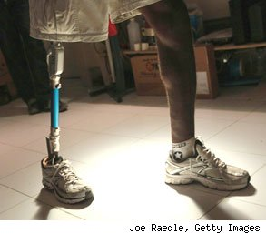 prosthetic limbs fraudulent sales