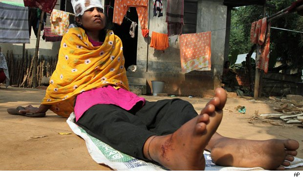 Bangladesh factory workers want jobs back.