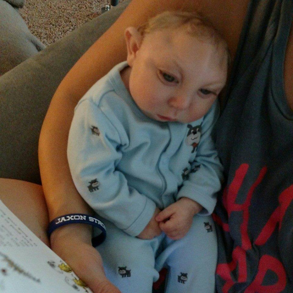 Parents of 'miracle baby' with microcephaly speak out amid Zika scare