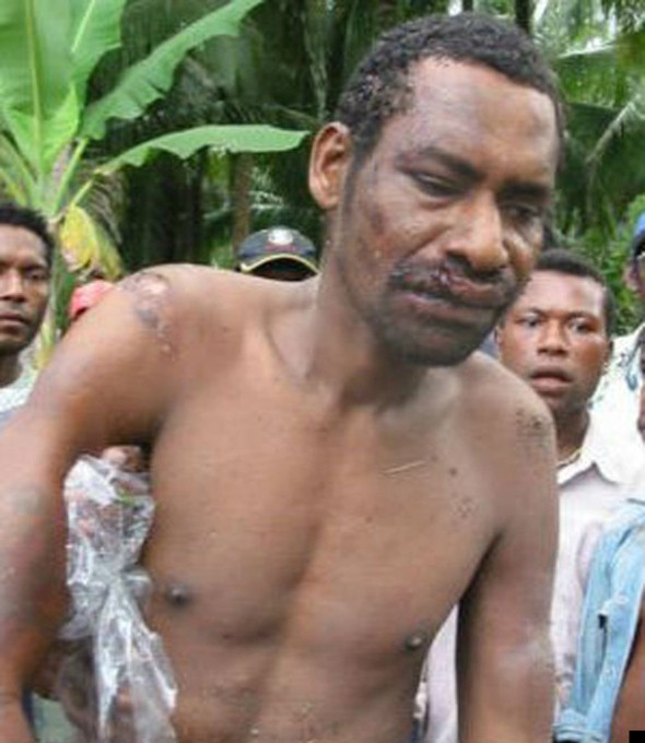 Papua New Guinea cannibal hacked to death by villagers