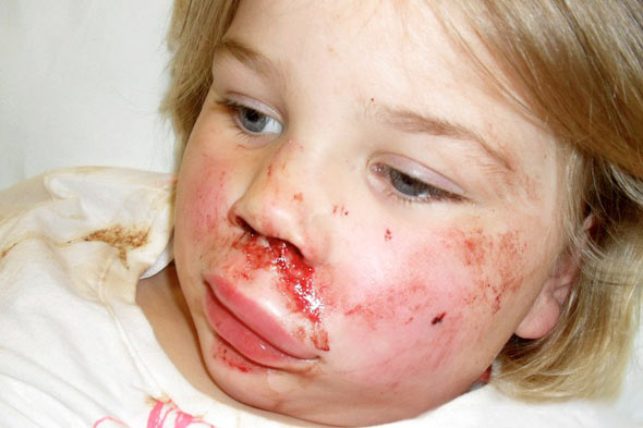 Thugs hurl brick in four-year-old's face