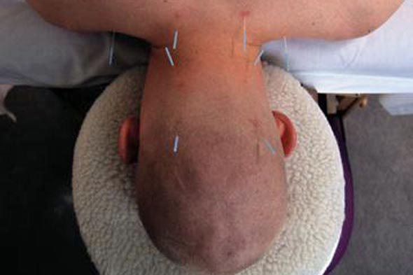 ASBO yob gets acupuncture and YOU are paying for it