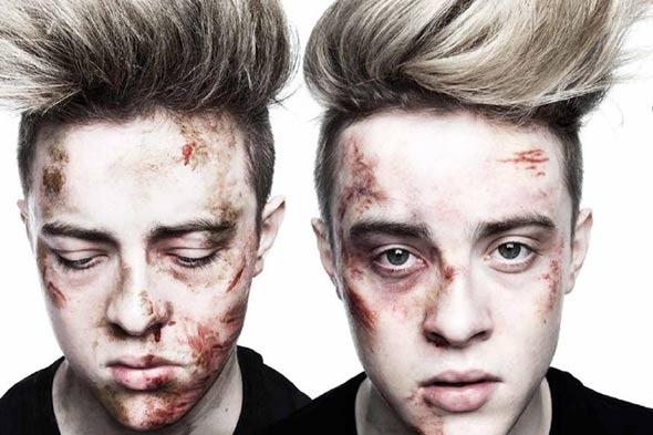Stars pose battered and bruised for Irish anti-bullying campaign