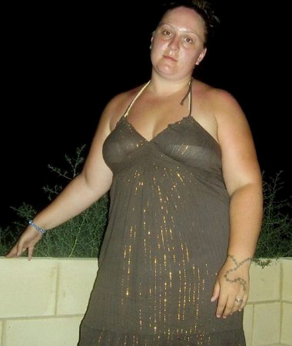 Holly Emms before her gastric bypass operation