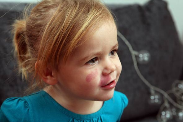 Birthmark toddler airbrushed in school nursery pic
