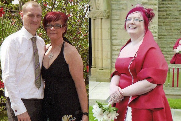 Suzanne Gaskell before and after her weight loss