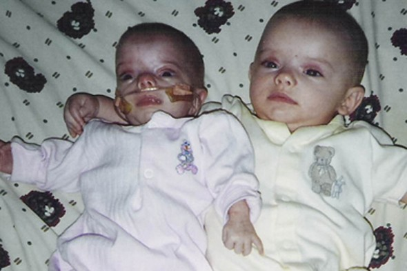 Dwarf in the house! Twin with primordial dwarfism isn't letting it stop her keeping up with her sister