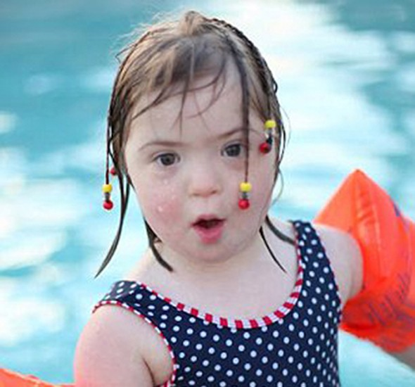 Model behaviour: 5-year-old girl with Down's Syndrome becomes child model