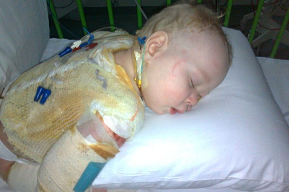 Baby almost dies from being scalded by drop of hot tea