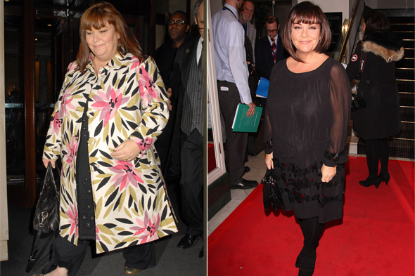 Dawn French On Her Dramatic Weight Loss - And The Pressure ...