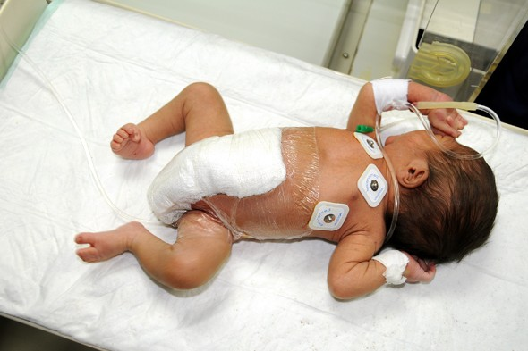Parents celebrate successful operation on baby born with six legs