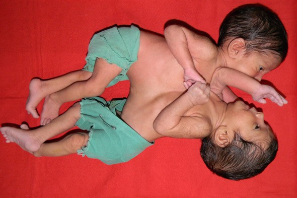 Conjoined twins separated in India: Baby girls had been abandoned by their parents