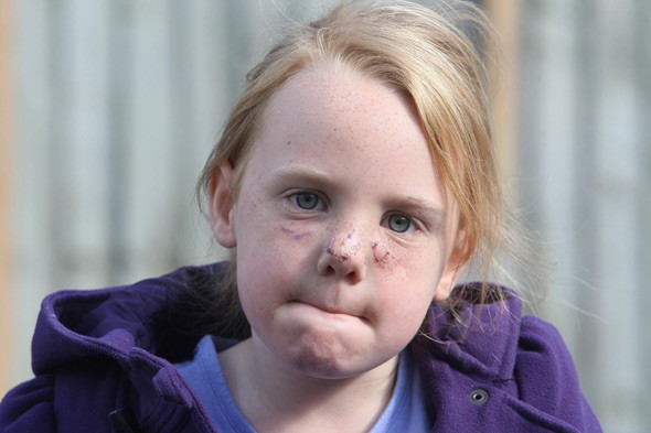 Abbie Yarrow: Family fury as owner of dog that savaged their daughter goes unpunished