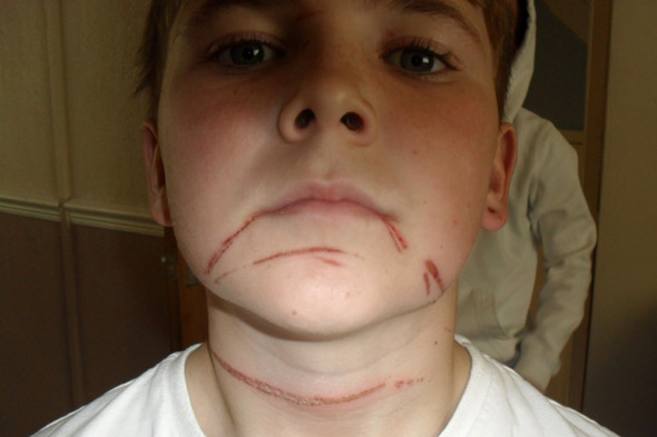 Schoolboy cyclist Euan Cusack shows burns suffered from rope strung across path of his bike