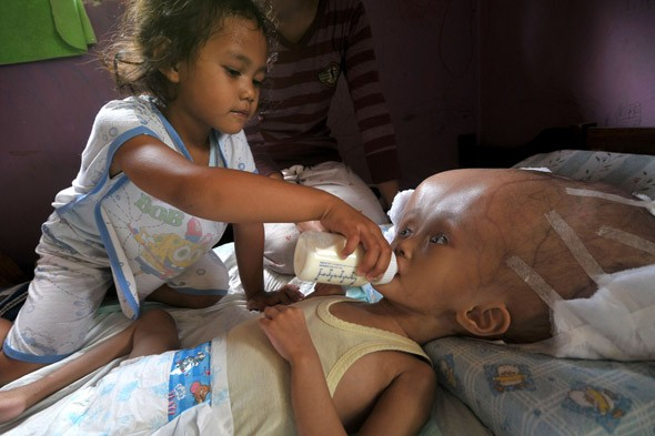 Hydrocephalus: Rare condition makes toddler's head grow three times the size of an adult's