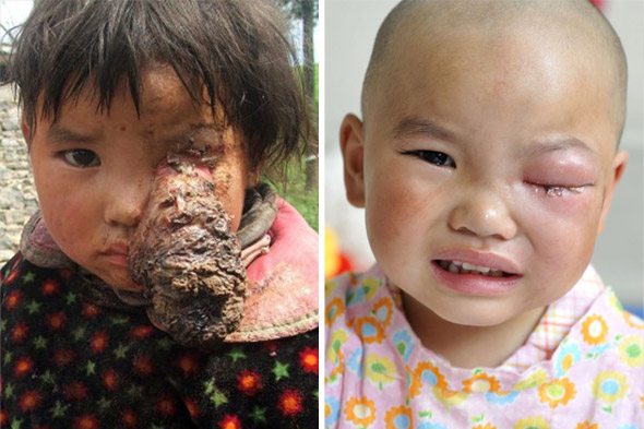 Amazing pictures: Girl, 3, has tennis ball-sized tumour removed from her eye