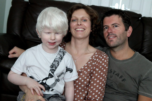 The little boy who dreads the sunshine - because it could give him cancer