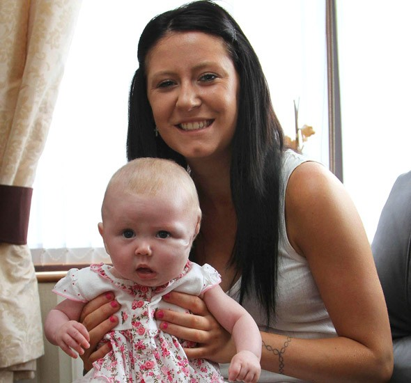 Miracle Mia: Baby born with cyst the size of a melon on her face survives life-saving surgery