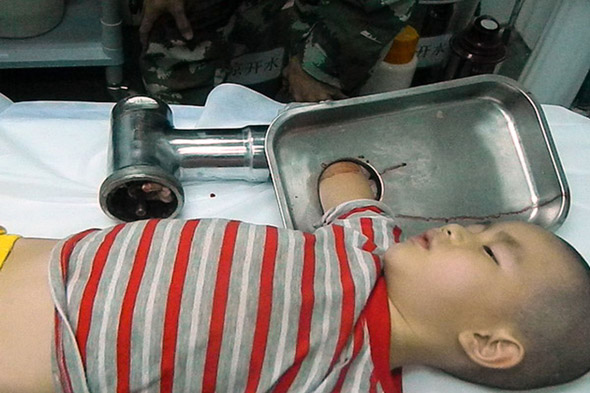 Boy, 5, gets arm trapped in meat grinder