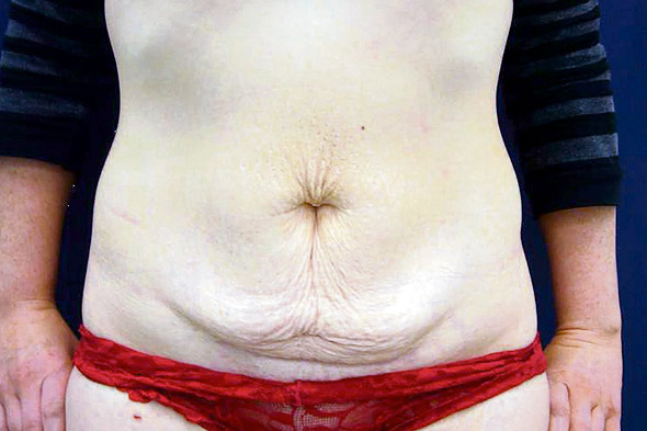 Tummy tuck left mum's stomach muscles so tight it brought on premature labour