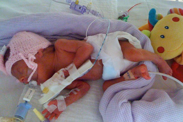 The most premature twin girls ever to survive in Britain are thriving at home