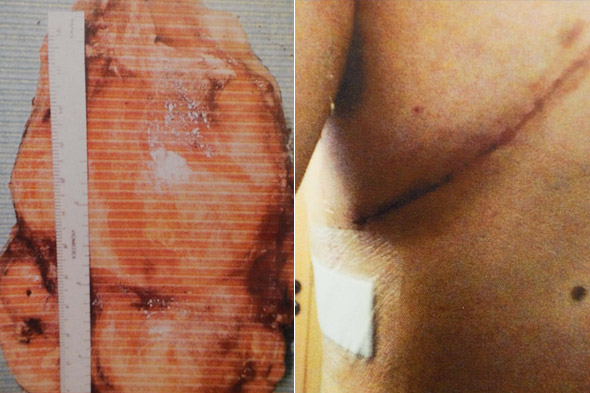 Teen with 'heartburn' had cyst the size of a grapefruit which could have exploded inside his heart!