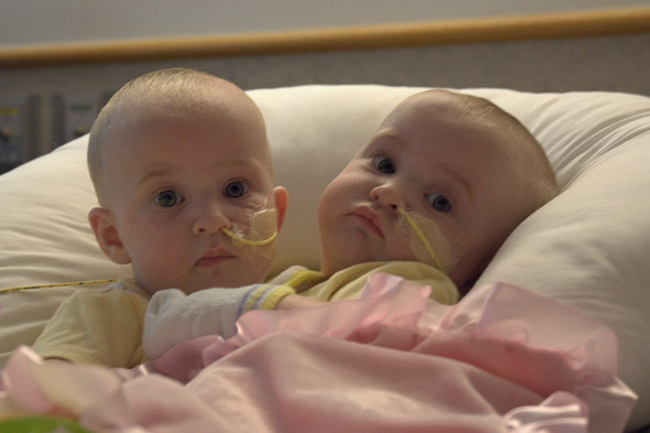 Conjoined twins successfully separated in time for Christmas