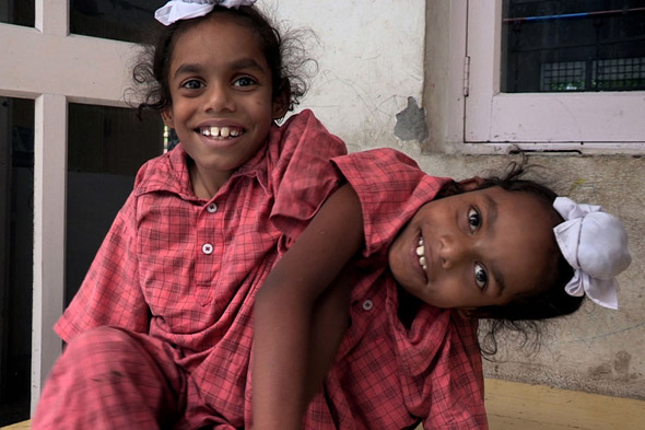 Meet the remarkable conjoined twins who have two heads but only one body!