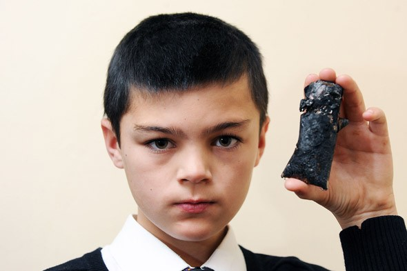 Blackberry catches fire and scars schoolboy for life
