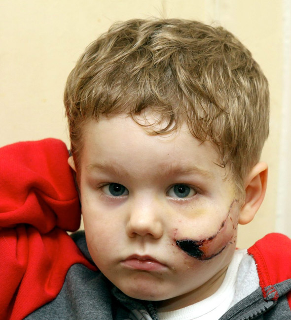 Boy, 3, needs 100 stitches in his face after attack by Japanese Akita dog