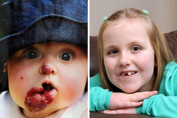 Smiling again! The girl whose birthmark 'smudge' turn into a tennis ball-sized tumour