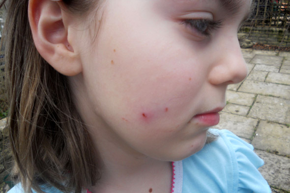 Girl, 7, bitten on the face by a foot-long rat as she slept in bed