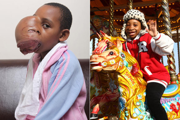 Girl, 8, has 2kg tumour removed from her face