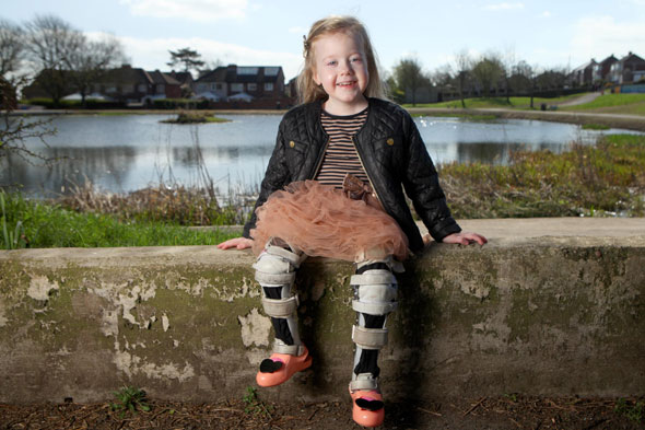 Girl, 4, born with legs like a frog can walk thanks to Forrest Gump-style splints