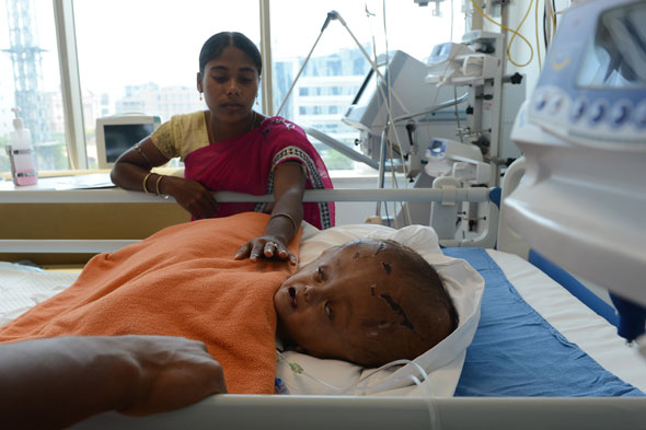 Successful op for toddler whose head swelled to three times normal size