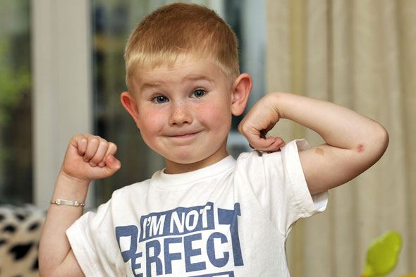 Boy, 5, unscathed after being hit by car - thanks to his 'bendy bones'