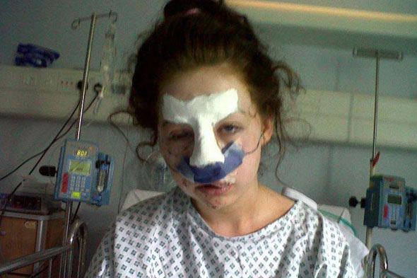 Girl's nose and lips left hanging off in attack by friend's dog