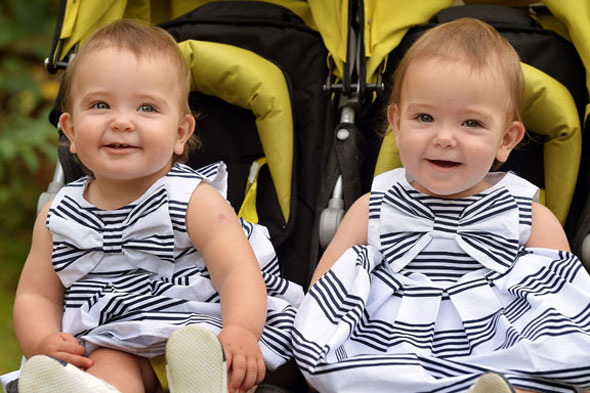 Separated conjoined twins celebrate their first birthday