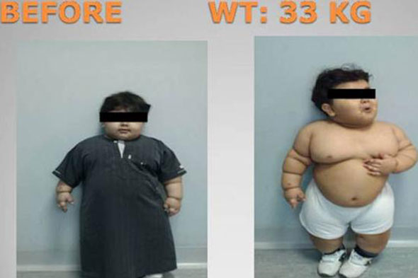 Obese boy, 2, is youngest person ever to have weight-loss surgery