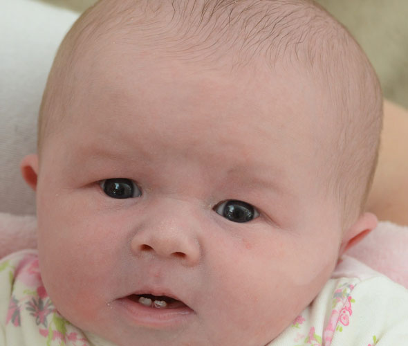 'Breastfeed? No chance!'  Mum's surprise as baby is born with two front teeth!