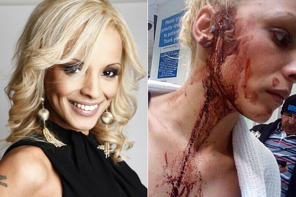 Baby-death actress scarred for life after thug glassed her in street