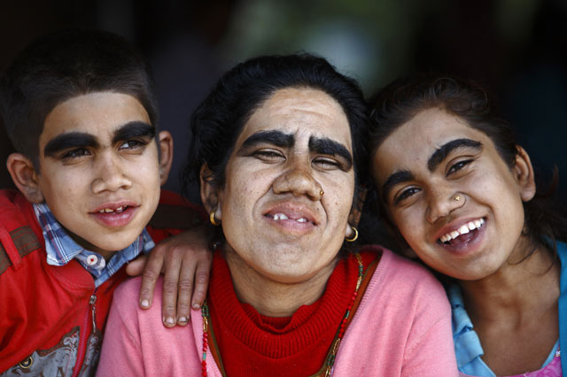 'Werewolf syndrome' family to have laser hair removal treatment