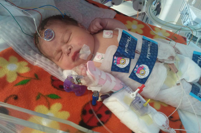 Baby 'frozen' after being deprived of oxygen at birth 'defrosted' for Christmas